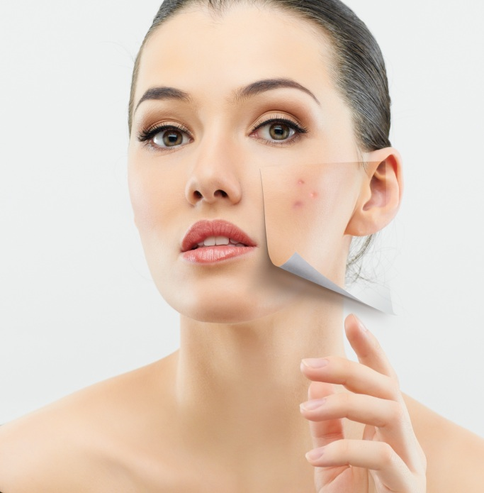 First Aid for Treating Stubborn Acne