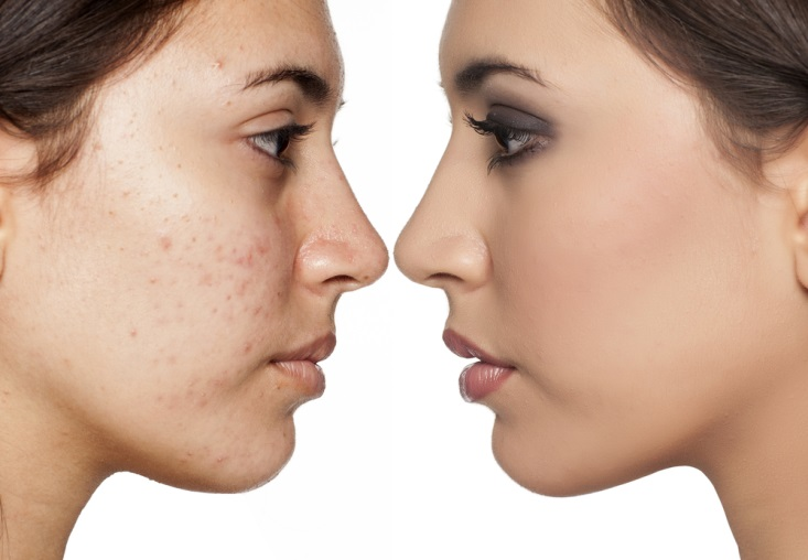 Why Are Black Spots Acne Scars Difficult to Disappear?