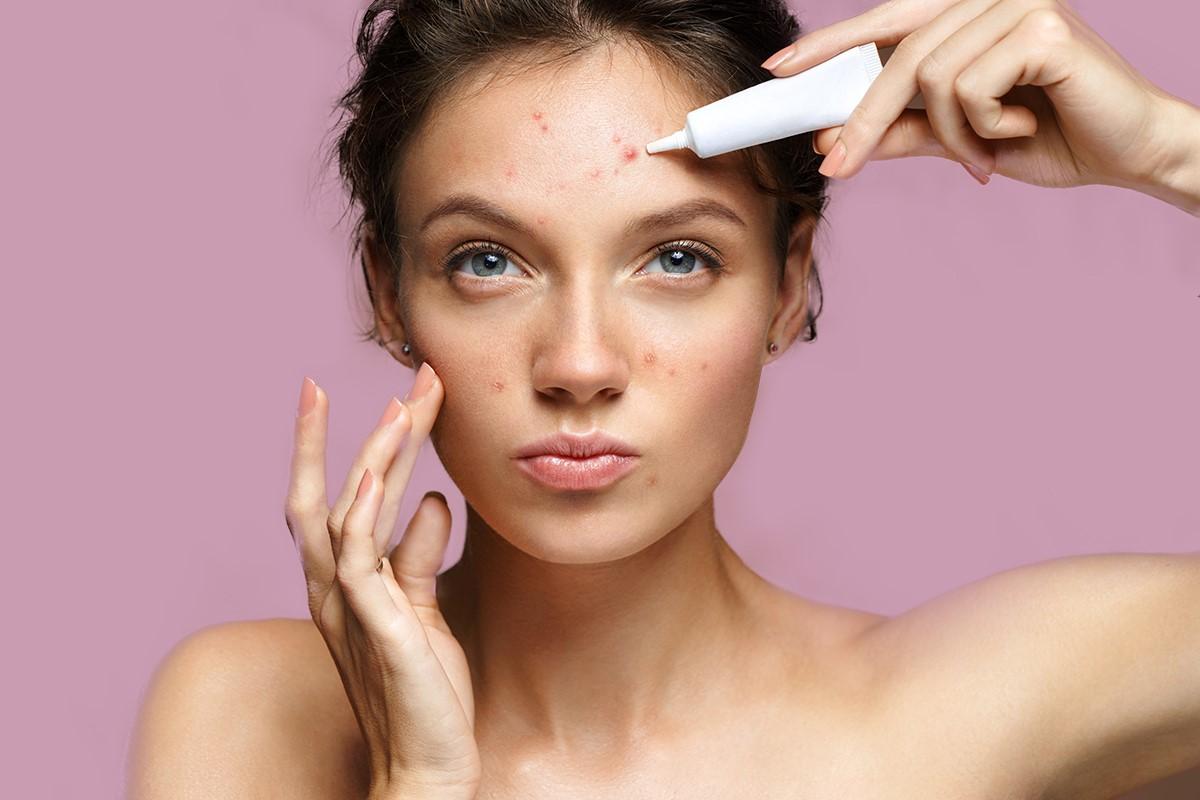 Sudah Pakai Skincare, Kok Masih Tetap Jerawatan?
